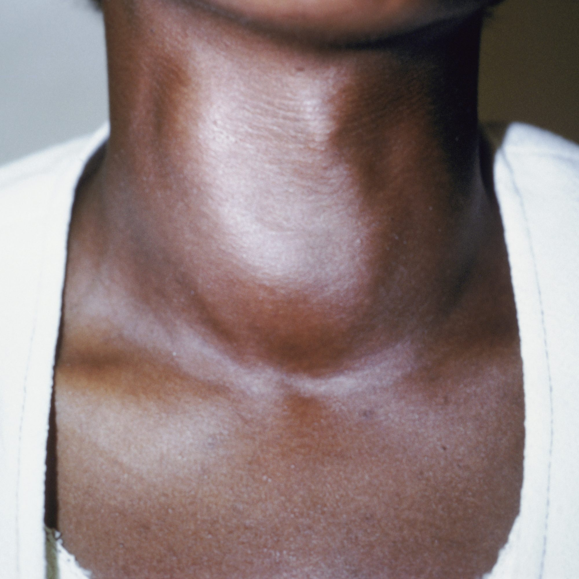 Iodine deficiency can cause a goiter