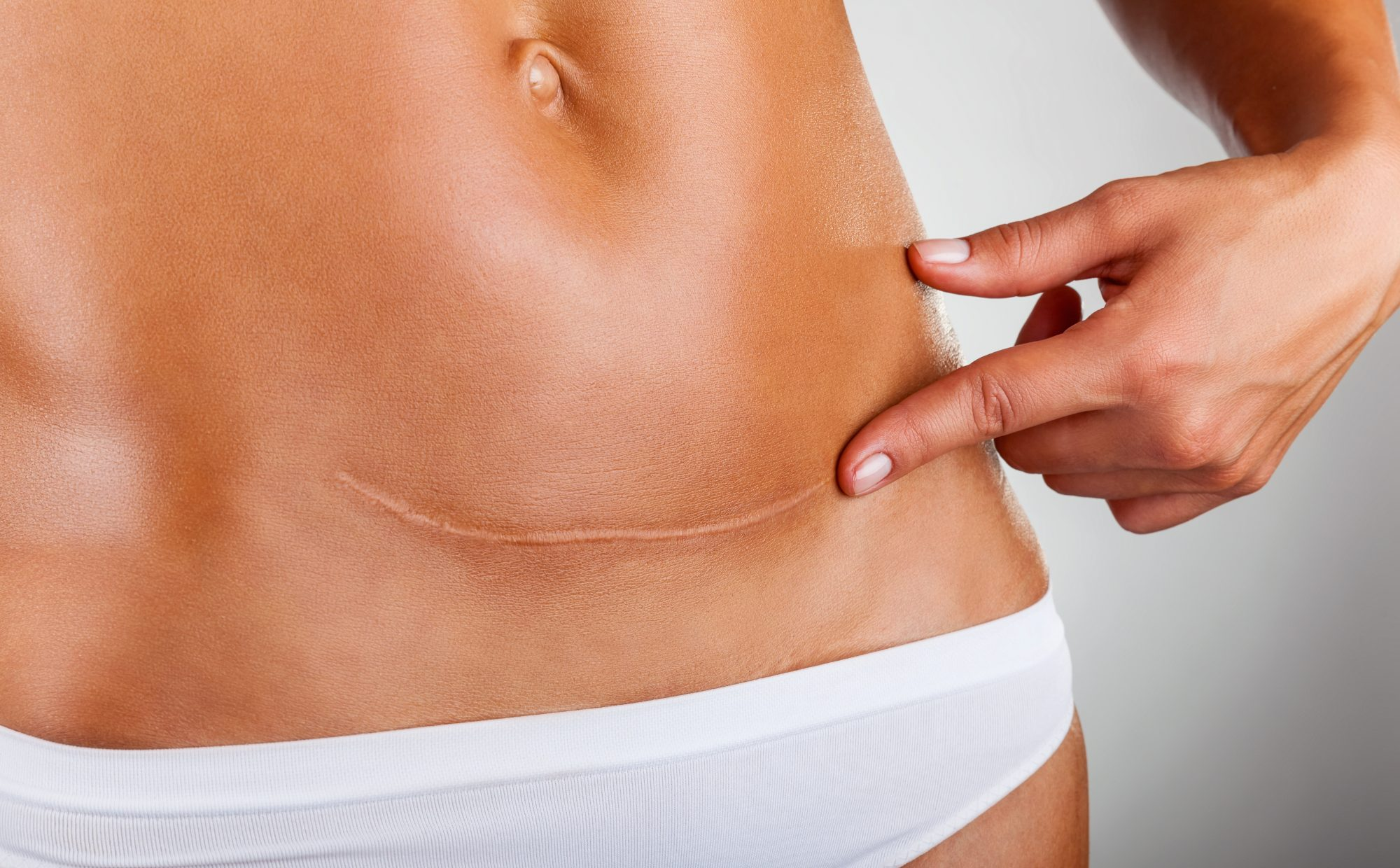 c-section-scar-stomach