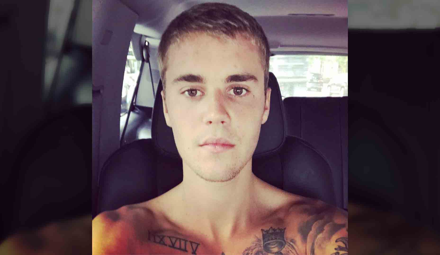 67f251f80e0d9 Justin Bieber Has Pink Eye. Here's What Causes This Icky Infection - Health