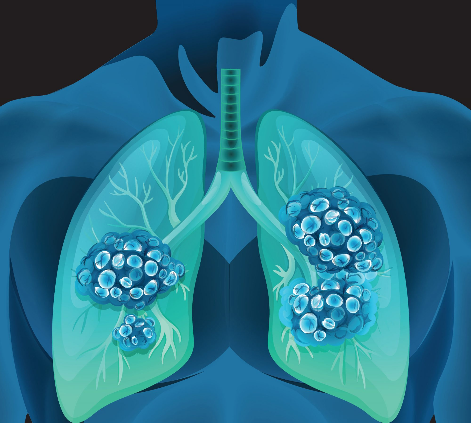 Lung Health - Magazine cover