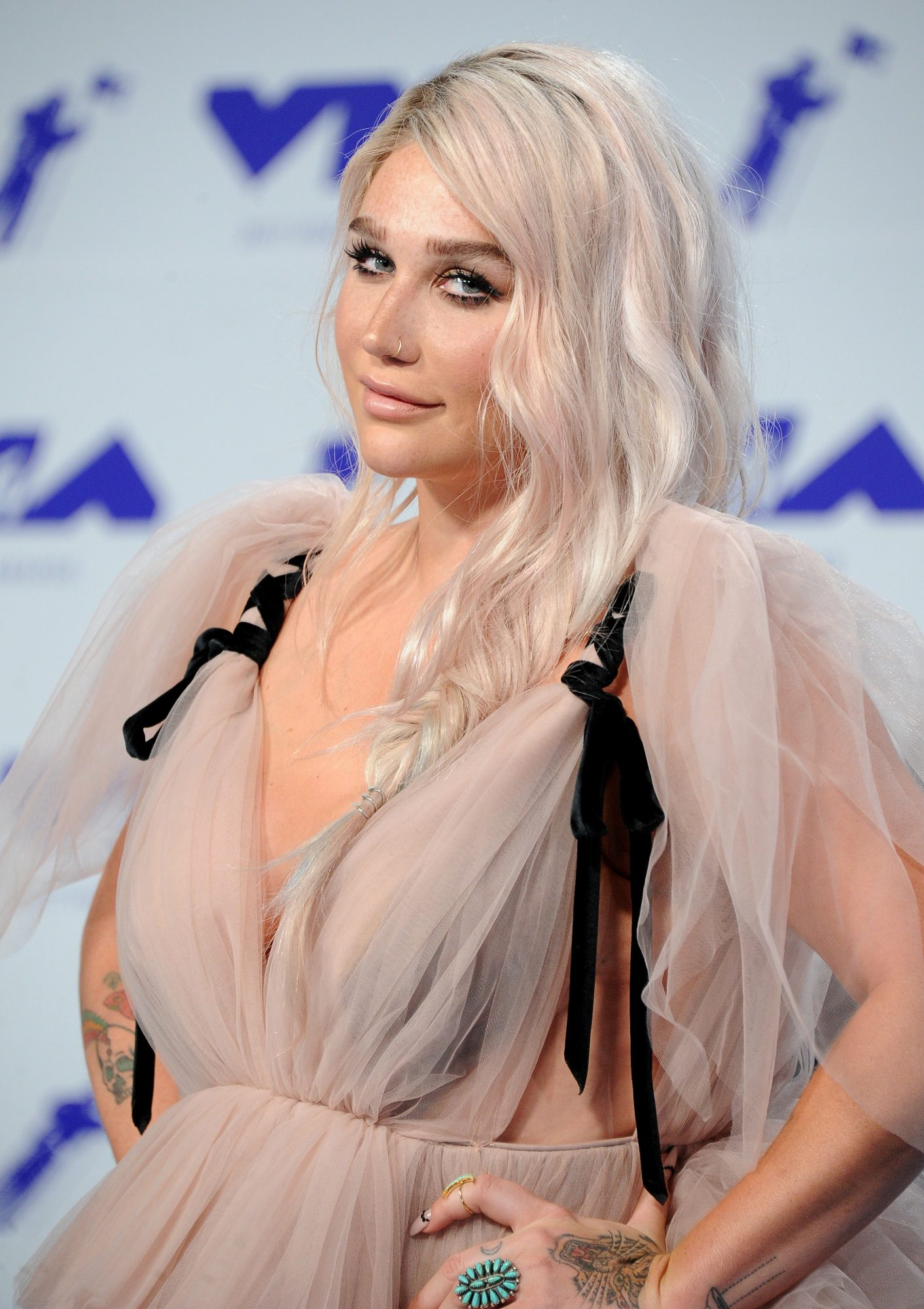 Kesha's Speech & Logic's Powerful Performance at VMAs Drives Major Increase to Suicide Prevention Hotline Calls