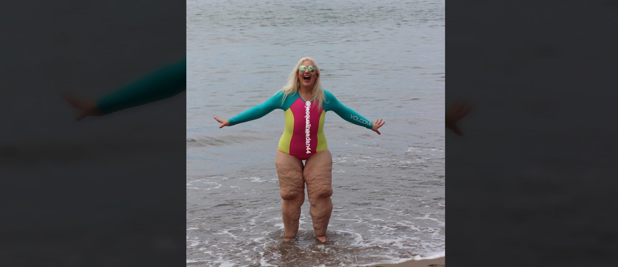 Woman Who Lost 350 Lbs. Says Skin Removal Surgery Isn't an Instant Fix: 'You're in So Much Pain'