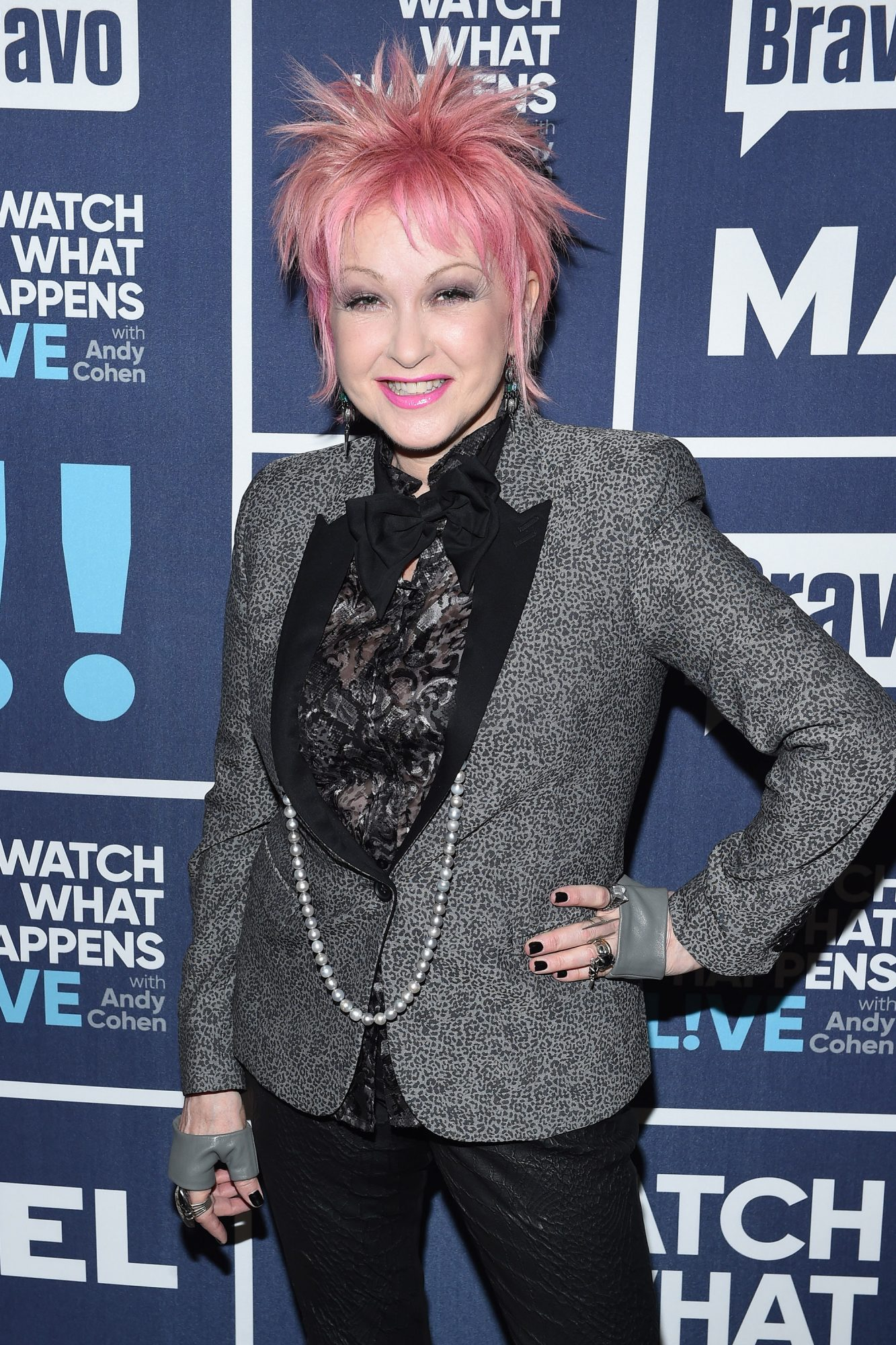 Cyndi Lauper on Her Psoriasis Diagnosis:  At the Height of Being That Sick You Feel Very Much Alone