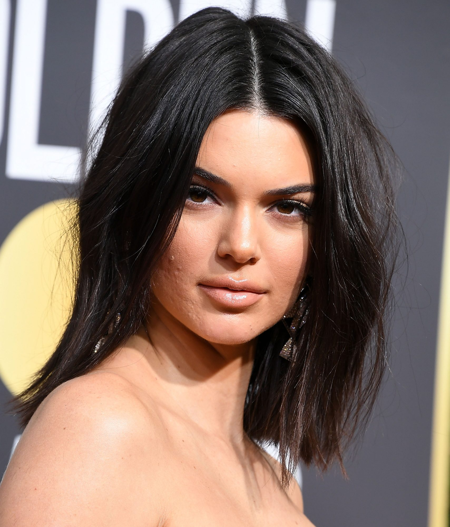 Kendall Jenner Opens Up About Her Golden Globes Acne: 'Never Let That S--- Stop You!'