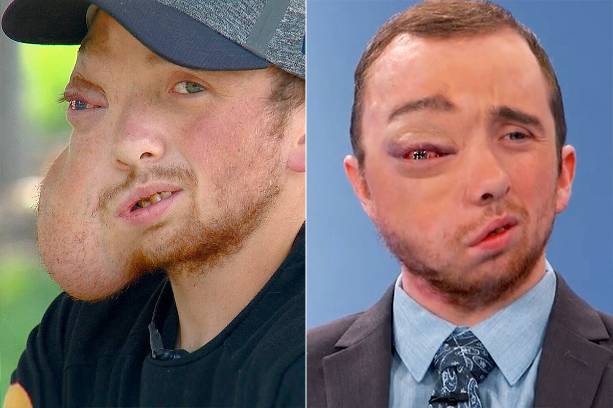 Man Who Had 8-Lb. Facial Tumor Removed Says He's Finally Pain-Free: 'It's A Whole Different World'