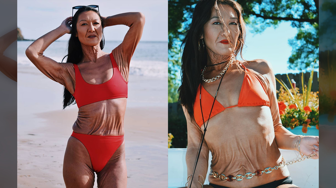 Model With Ehlers Danlos Syndrome Is Embracing Her Saggy Skin