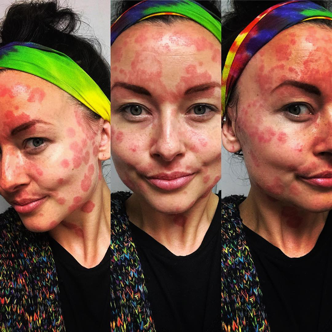 This Woman Posted a Selfie When Her Skin Condition Was Flaring Up to Make a Powerful Point