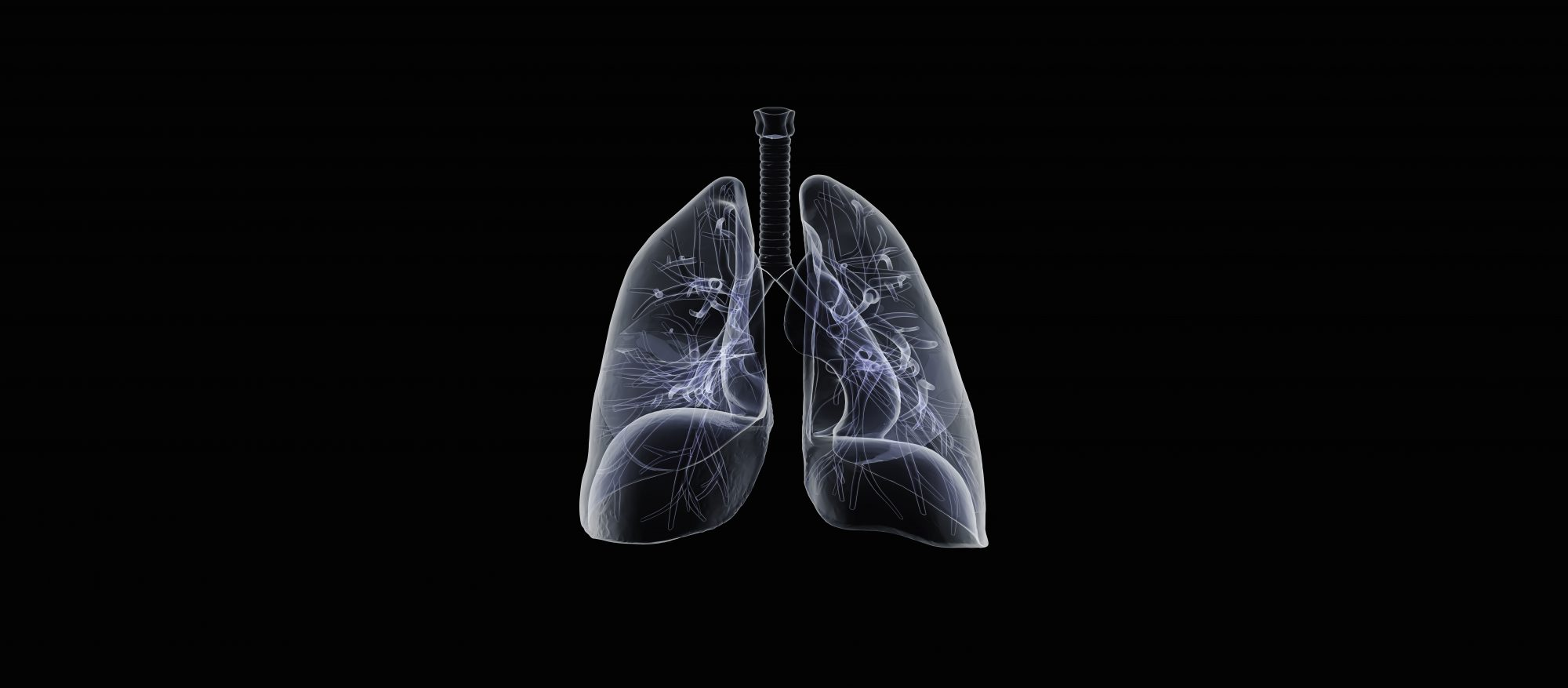 bronchitis-xray-lungs-bw