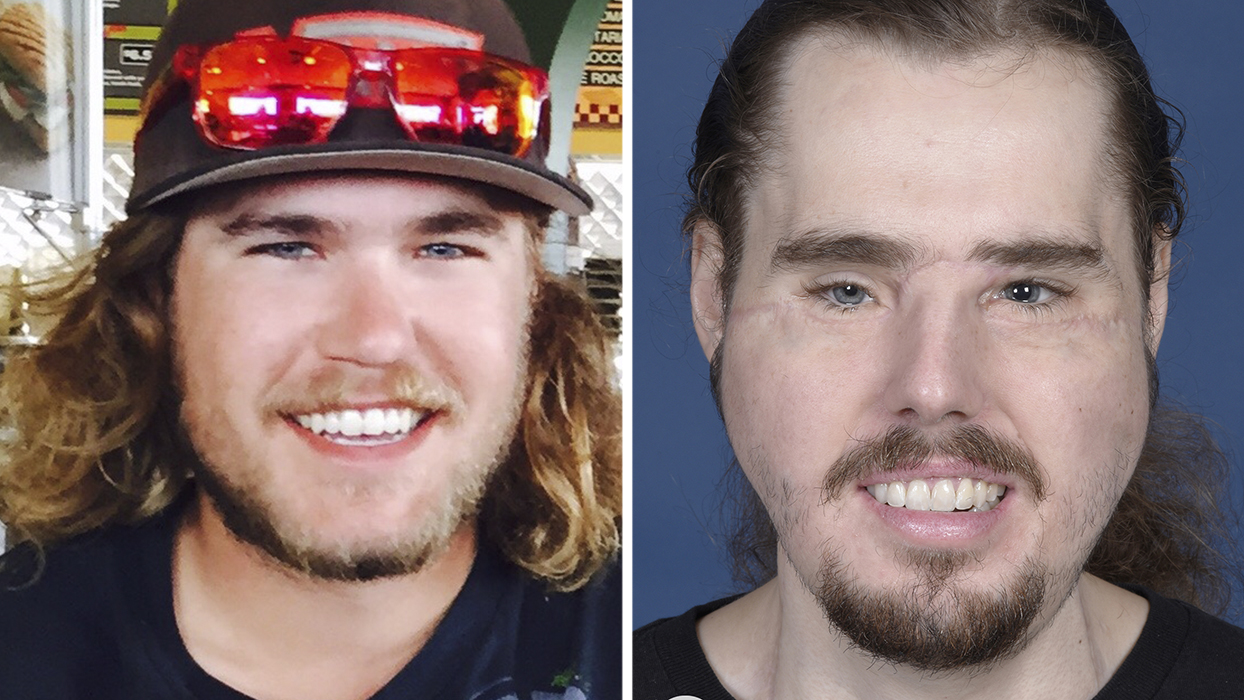 Cameron Underwood Reveals His Face Transplant Results - Health