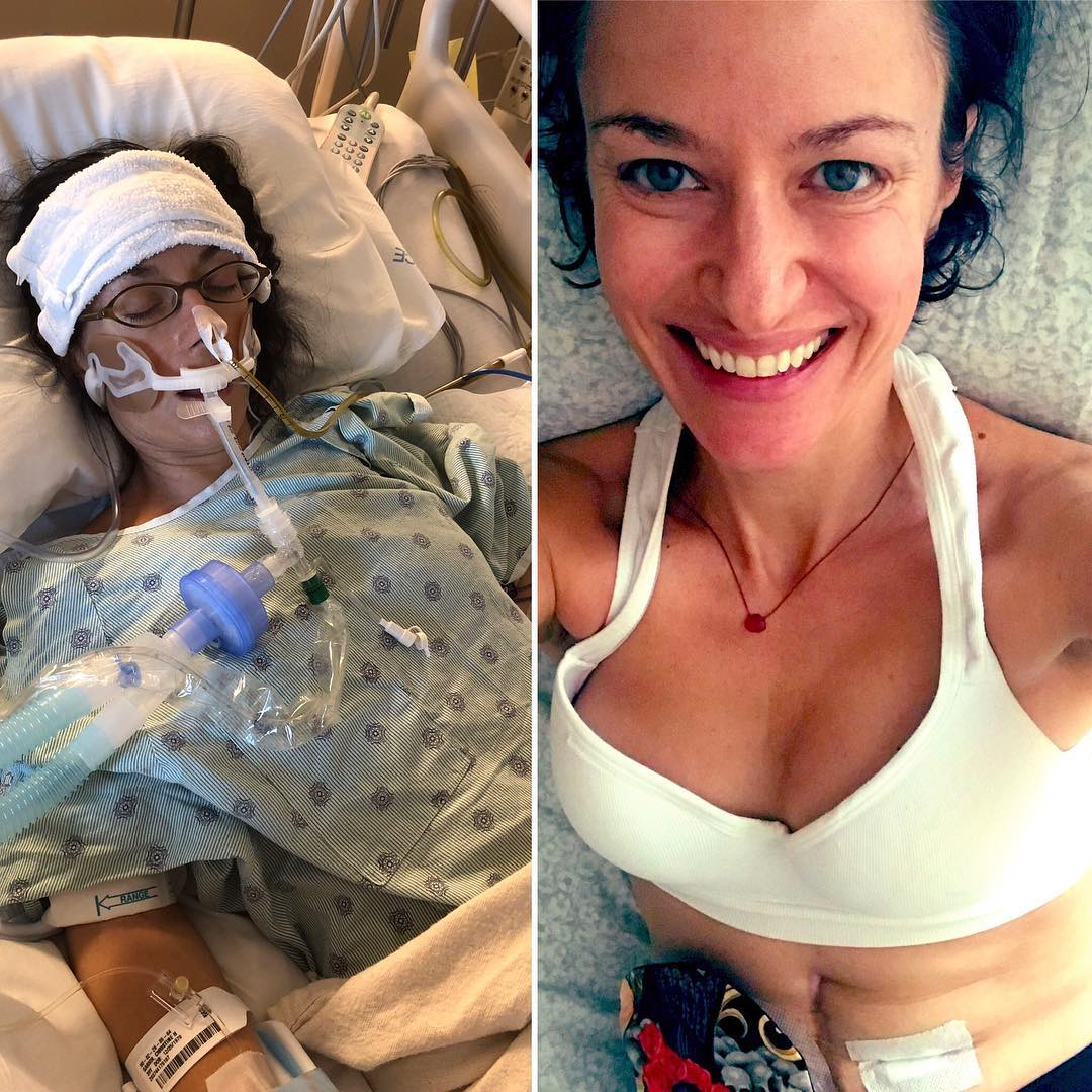This Woman Almost Died From Sepsis at Age 39—and it Taught Her an Important Lesson
