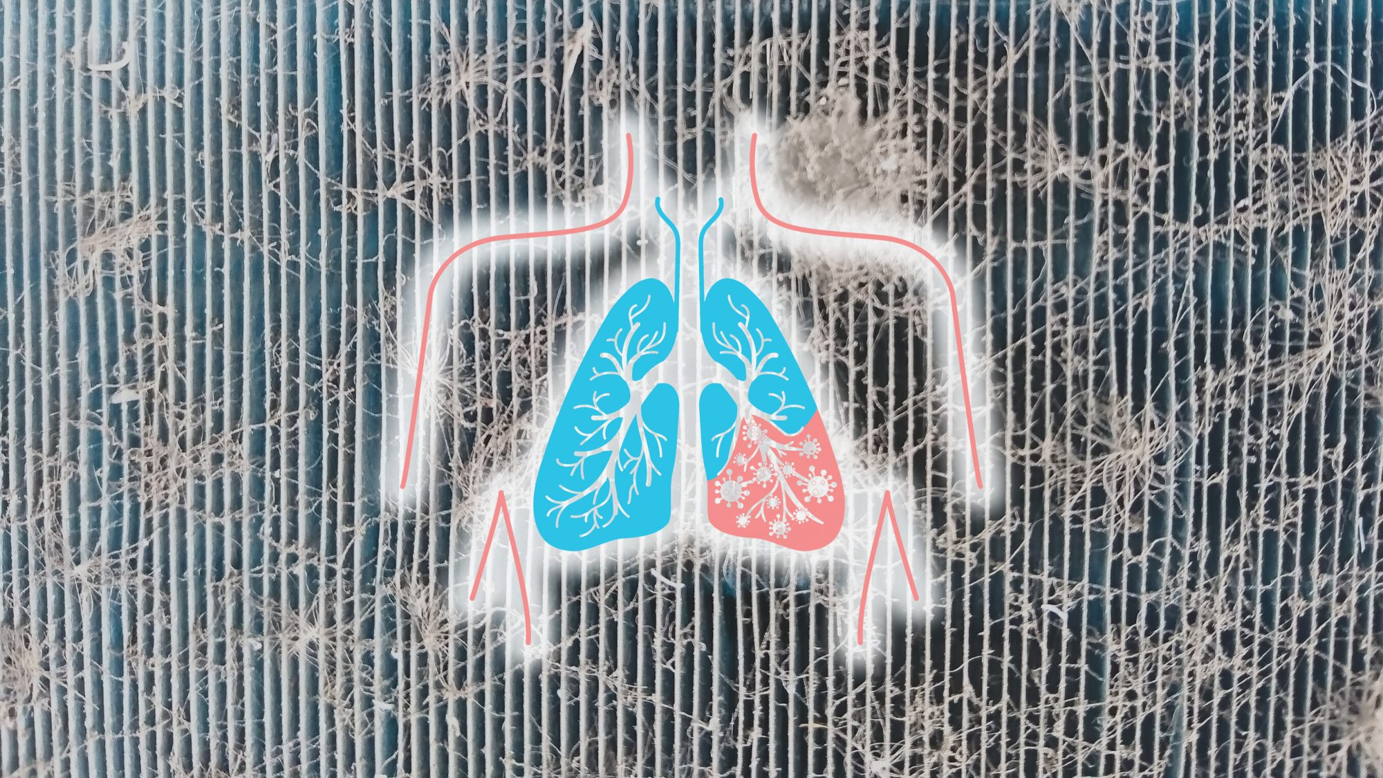 Bronchitis vs. Pneumonia: Here's How to Tell the Difference