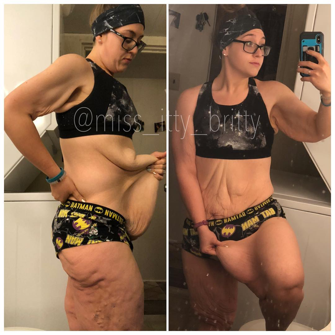 miss_itty_britty-extra-skin-weight-loss