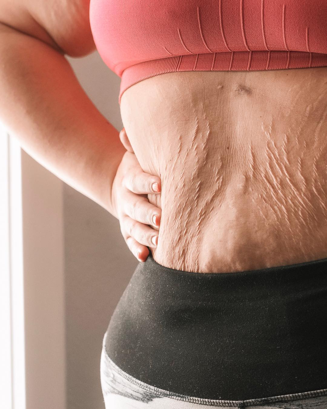 This Mom Shares Unedited Photos of Her Cellulite and Stretch Marks to Send a Message About Postpartum Bodies