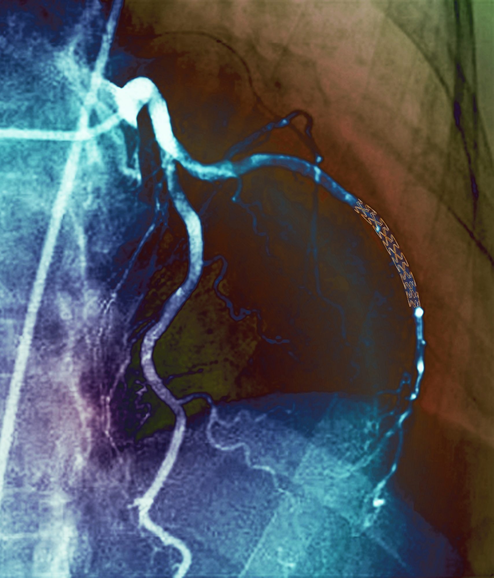 catheterization lab Coronary stent, X-ray Coronary stent. Coloured angiogram (blood vessel X-ray) of the coronary arteries of a 52 year old patient. The artery at right has had a stent placed in it to treat a blockage.