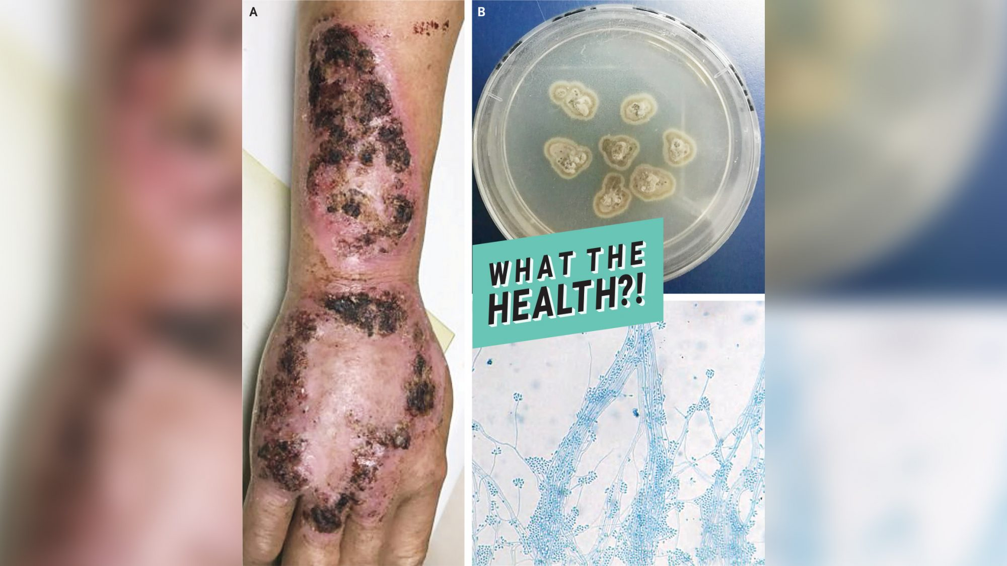 This Man's Weird Rash Turned Out to Be a Fungal Infection You Can Get From Gardening