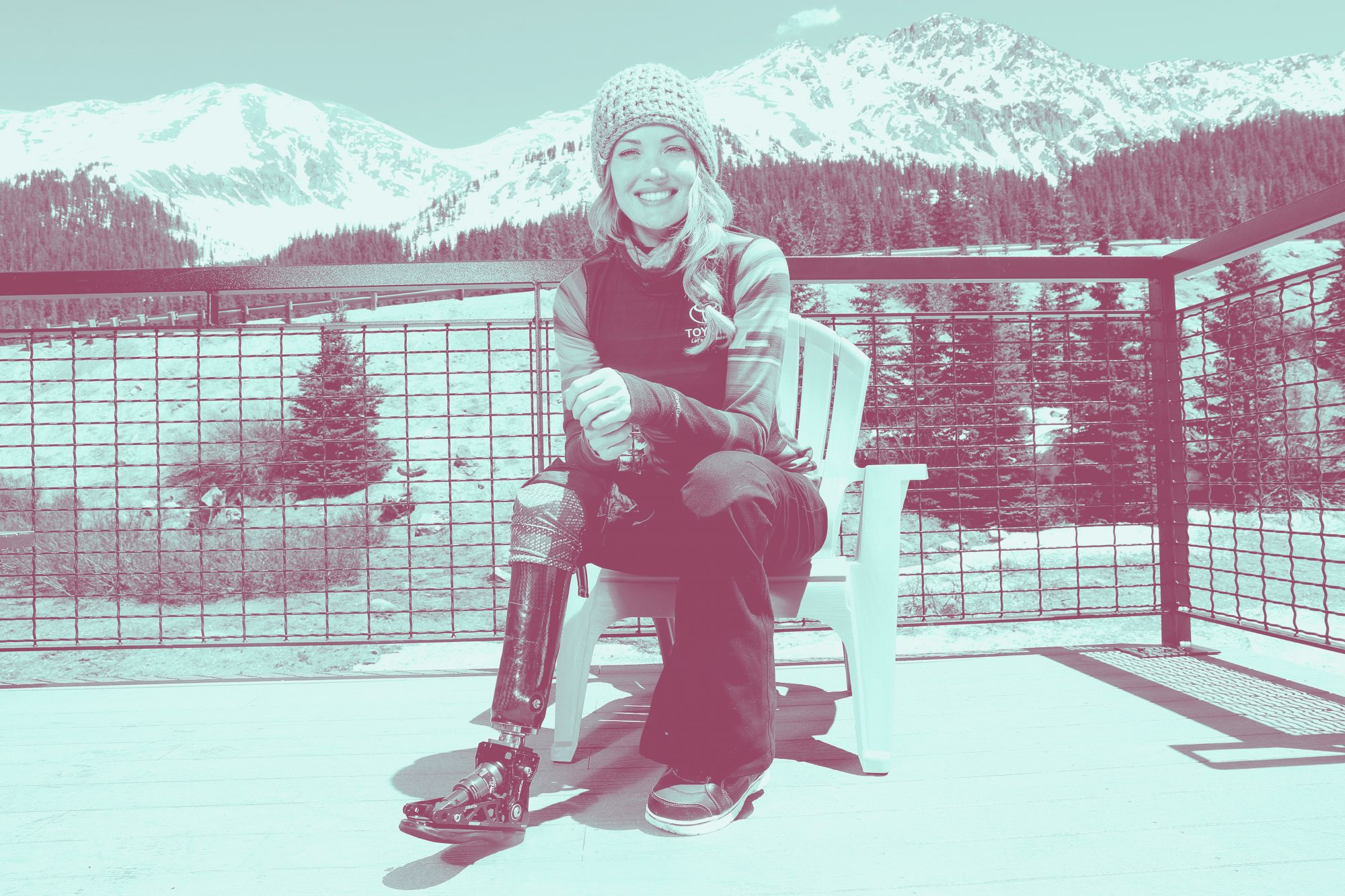 Amy Purdy Shows Off Her 'Real Legs' After 'Challenging' Three Weeks in Hospital Amid Health Scare