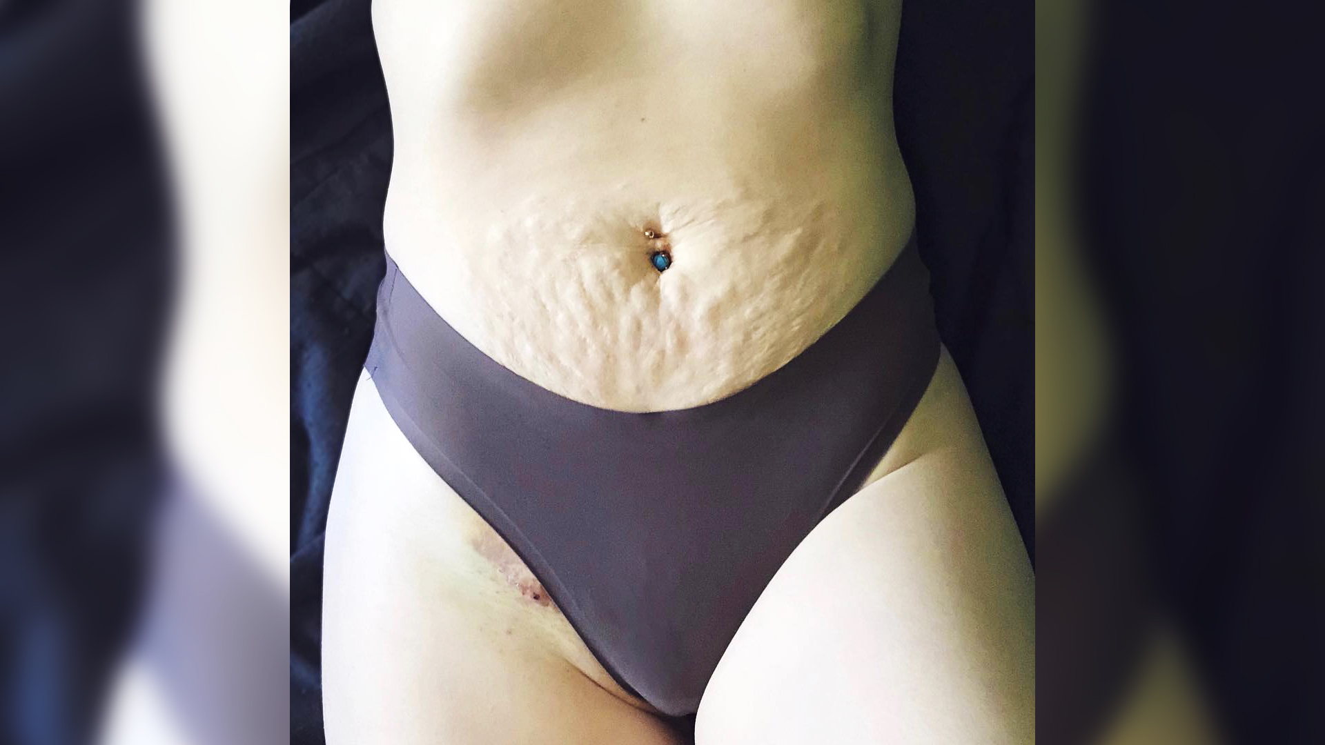 woman skin health body positive belly wellbeing acceptance woman influencer instagram social-media