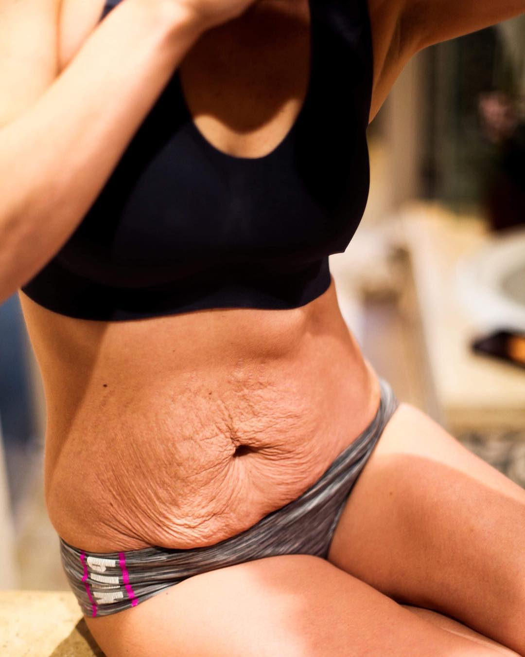 Influencer Shares Unedited Photo of Her Postpartum Stomach Wrinkles in Beautifully Raw Photo