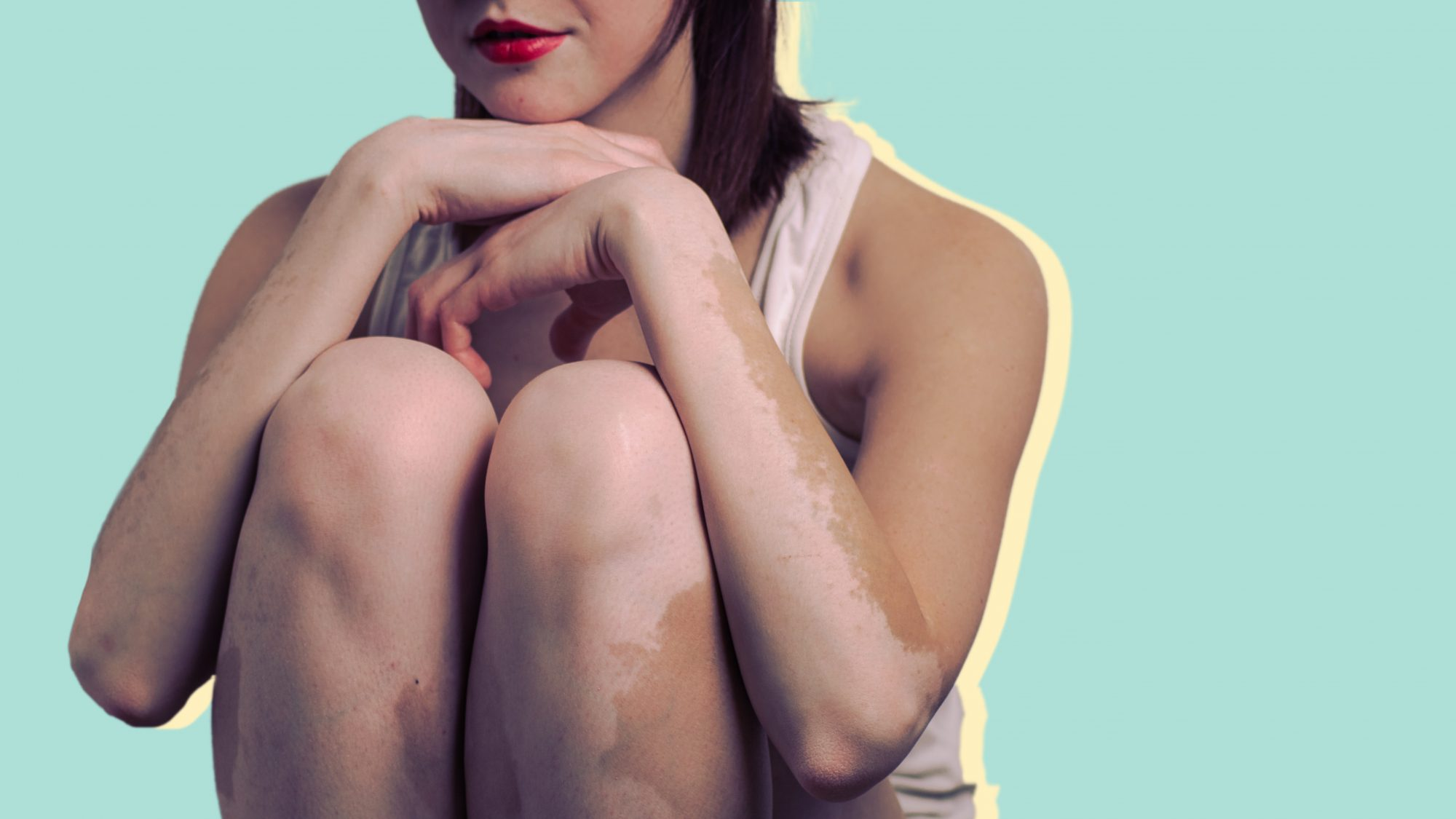 vitiligo treatment diagnosis woman health skin condition