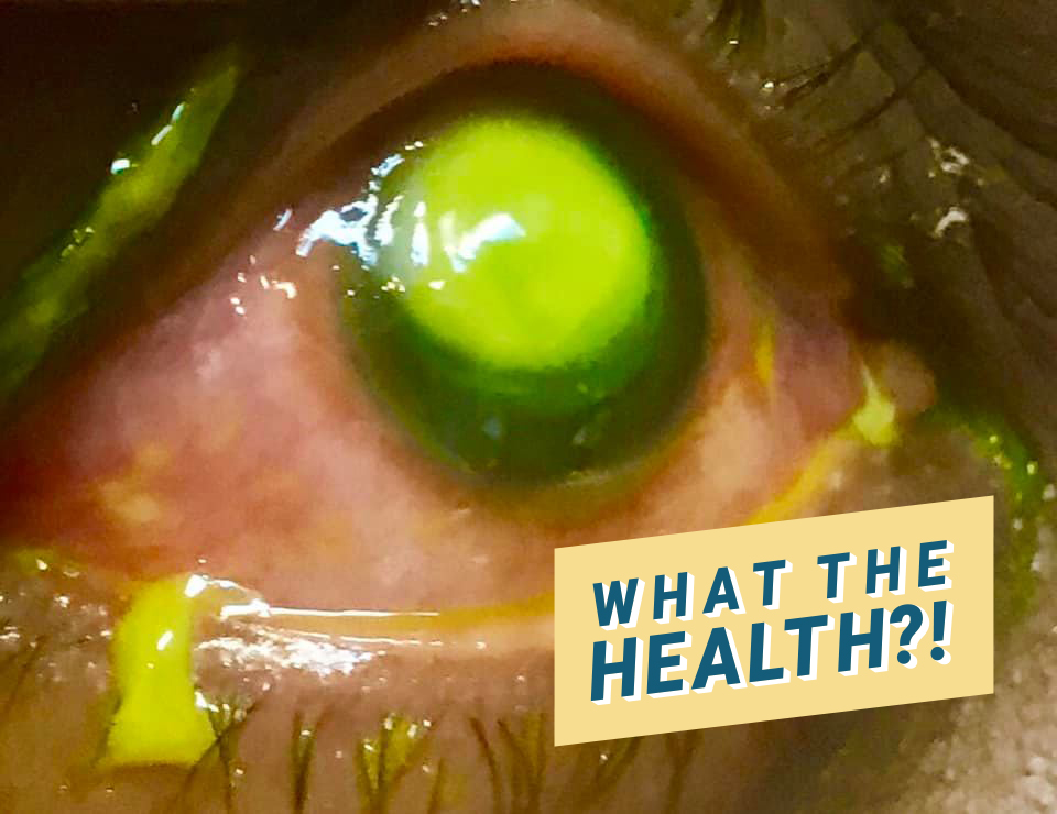 These Terrifying Photos Will Make You Think Twice About Sleeping in Your Contacts