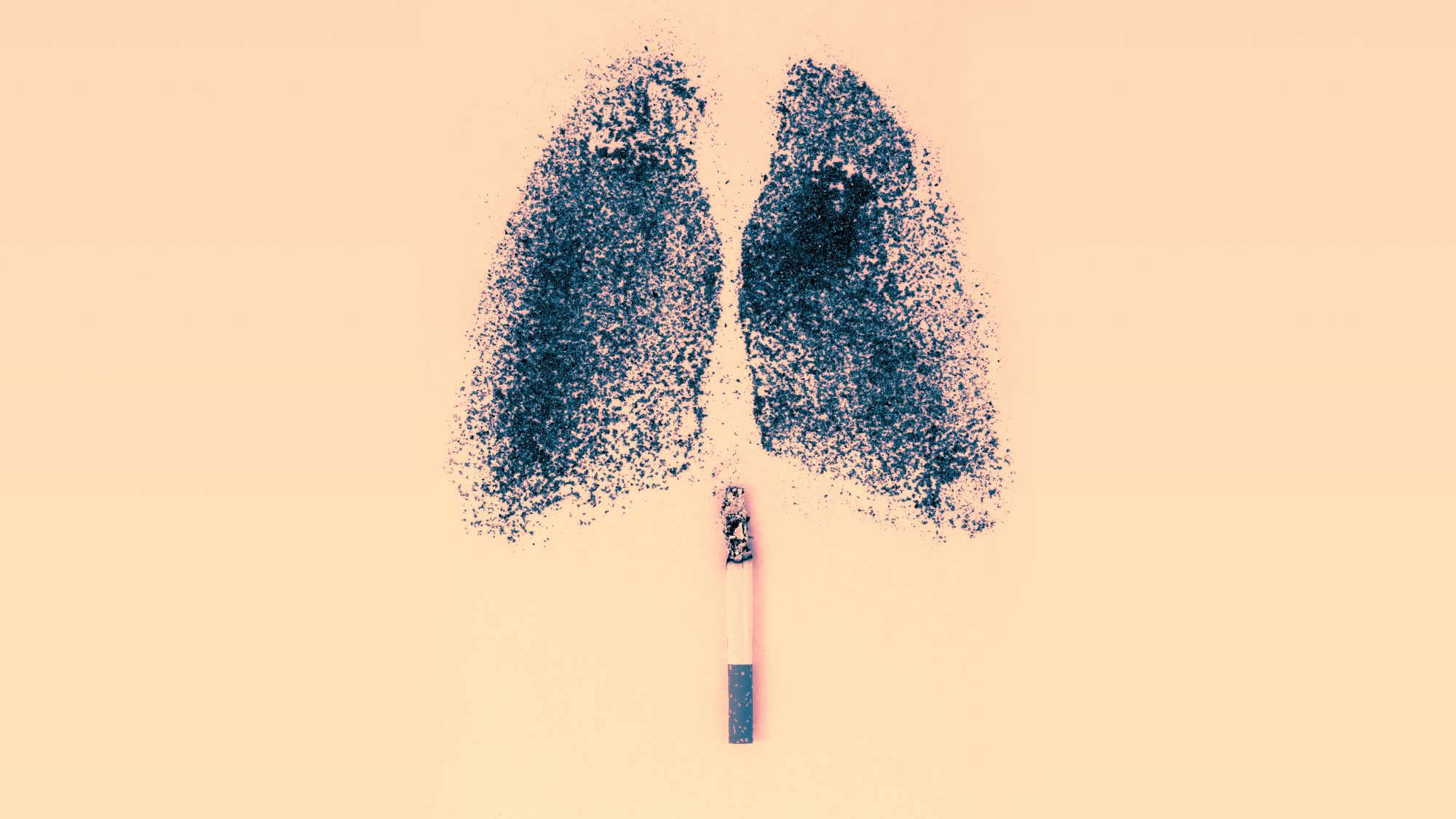 Lung Cancer and COPD Turned This Person's Lungs Completely Black