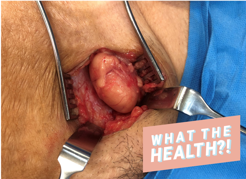 femoral-hernia-ovary woman health condition wellbeing surgery hernia ovary OBGYN