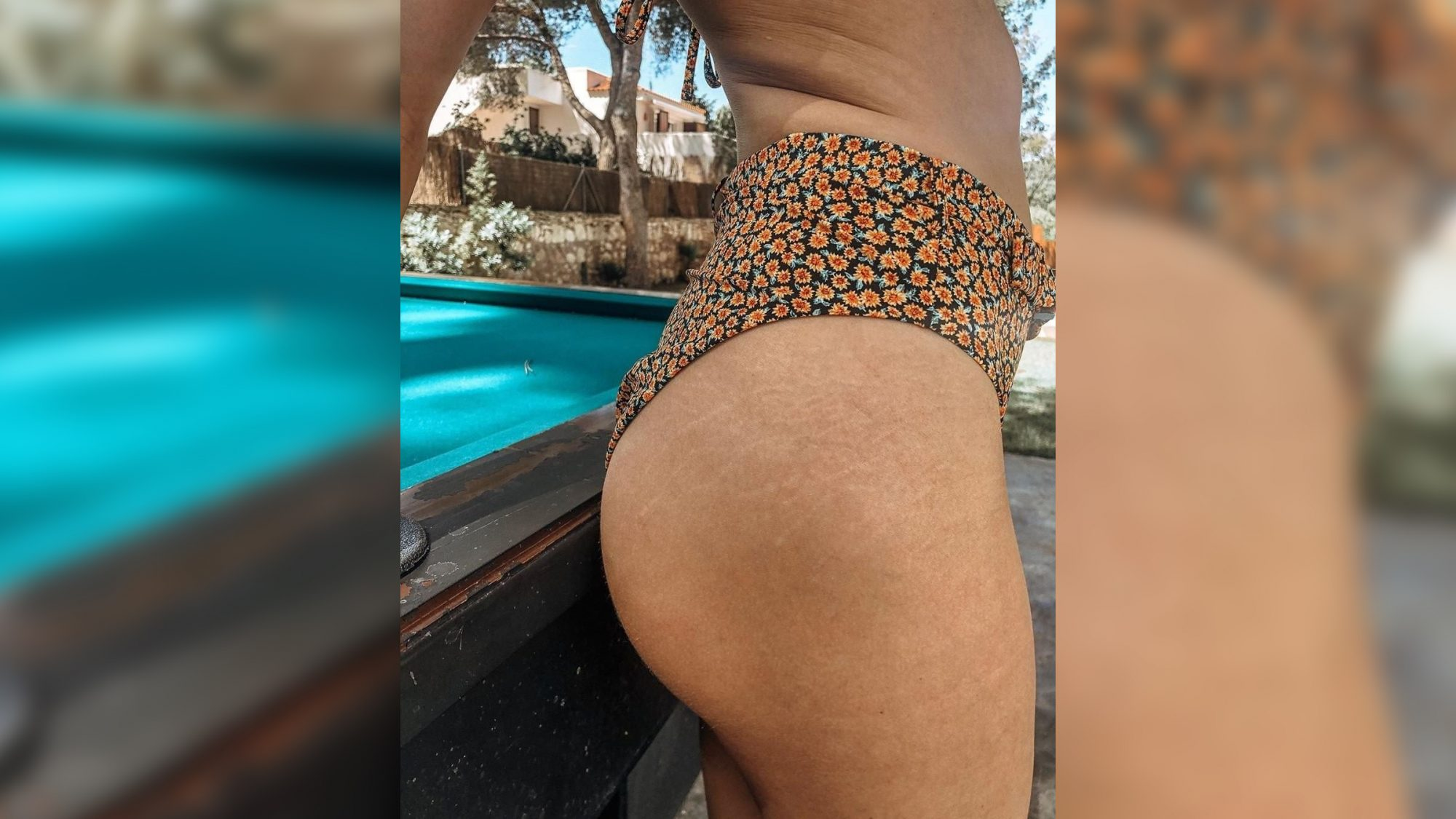 This Woman Is Showing Off Her Stretch Marks to Prove They Don't Require an Explanation
