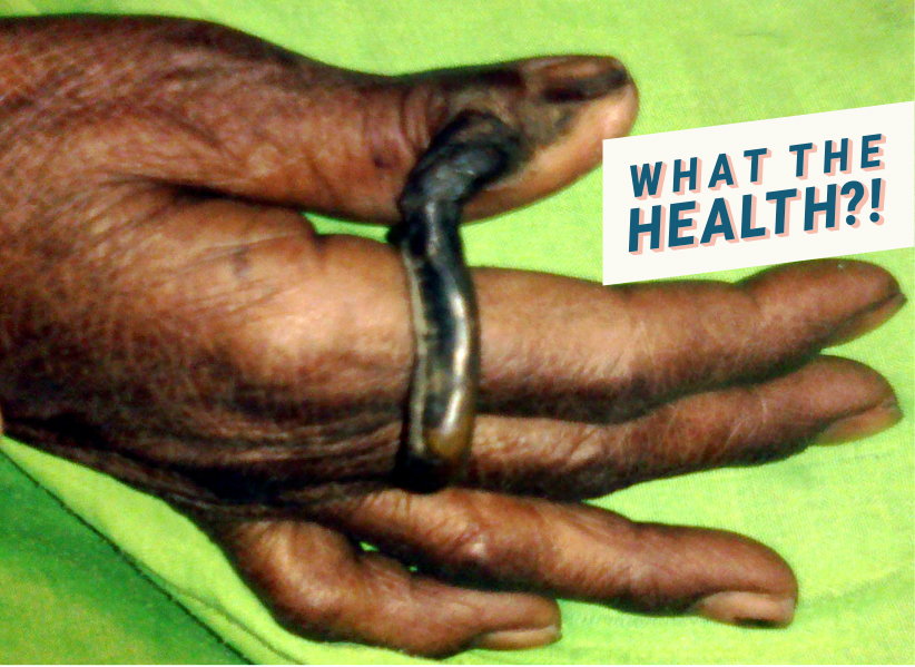 Giant cutaneous (keratotic) horn on the thumb Woman health wellbeing dermatology