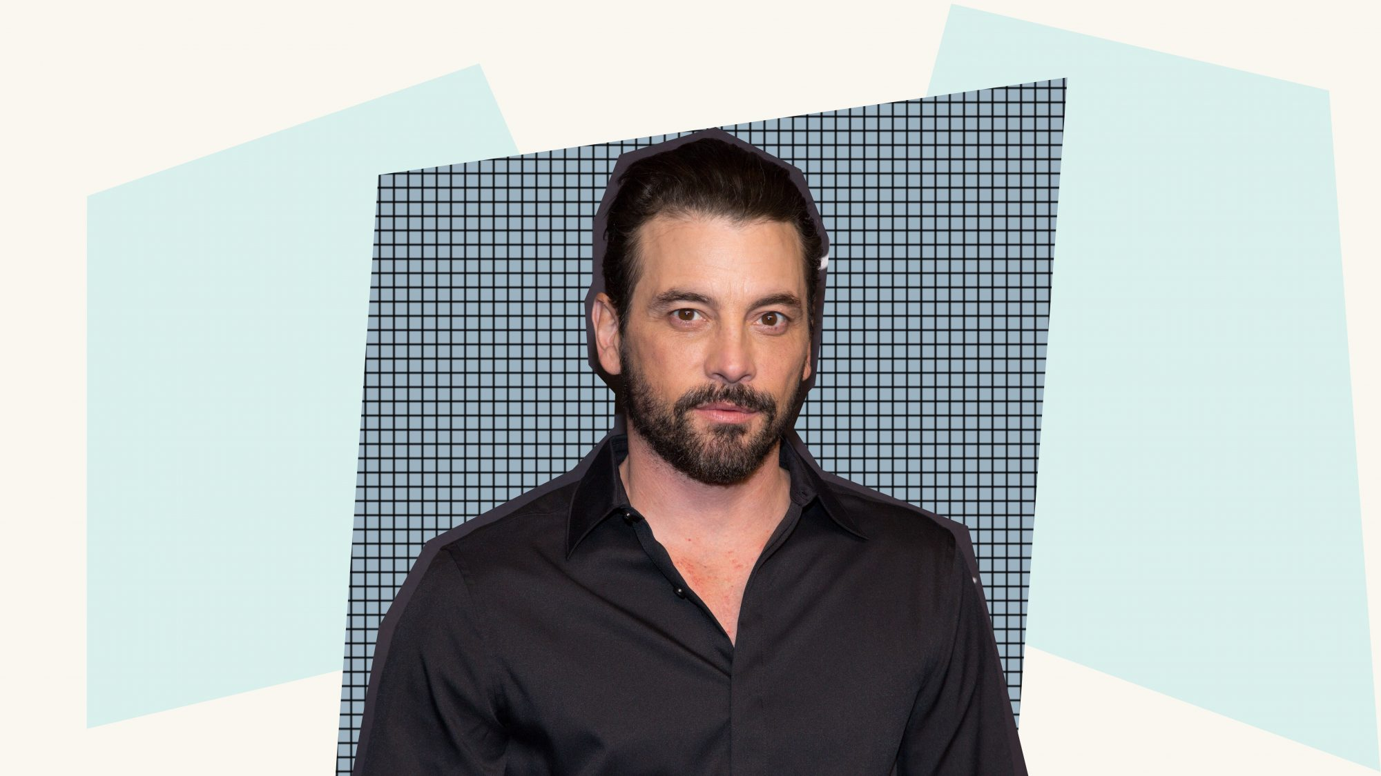 Skeet Ulrich Gives a 'Rare Look' Inside His Open Heart Surgery Nearly 40 Years Ago with Graphic Photo