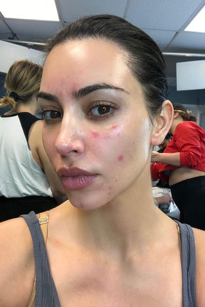 Kim Kardashian West Just Got Extra Candid About Her Psoriasis