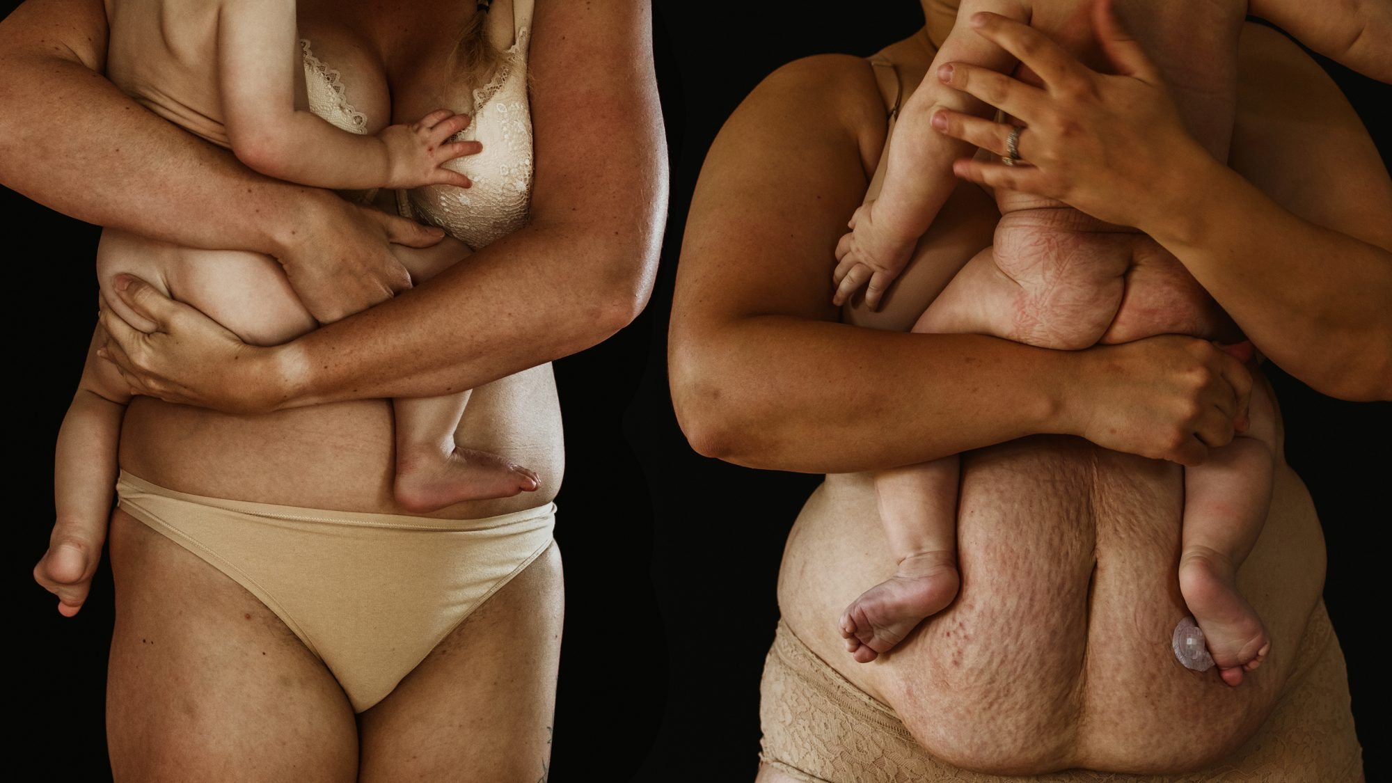Moms Strip Down in Stunning Photo Series That Puts Their Stretch Marks and Loose Skin on Full Display