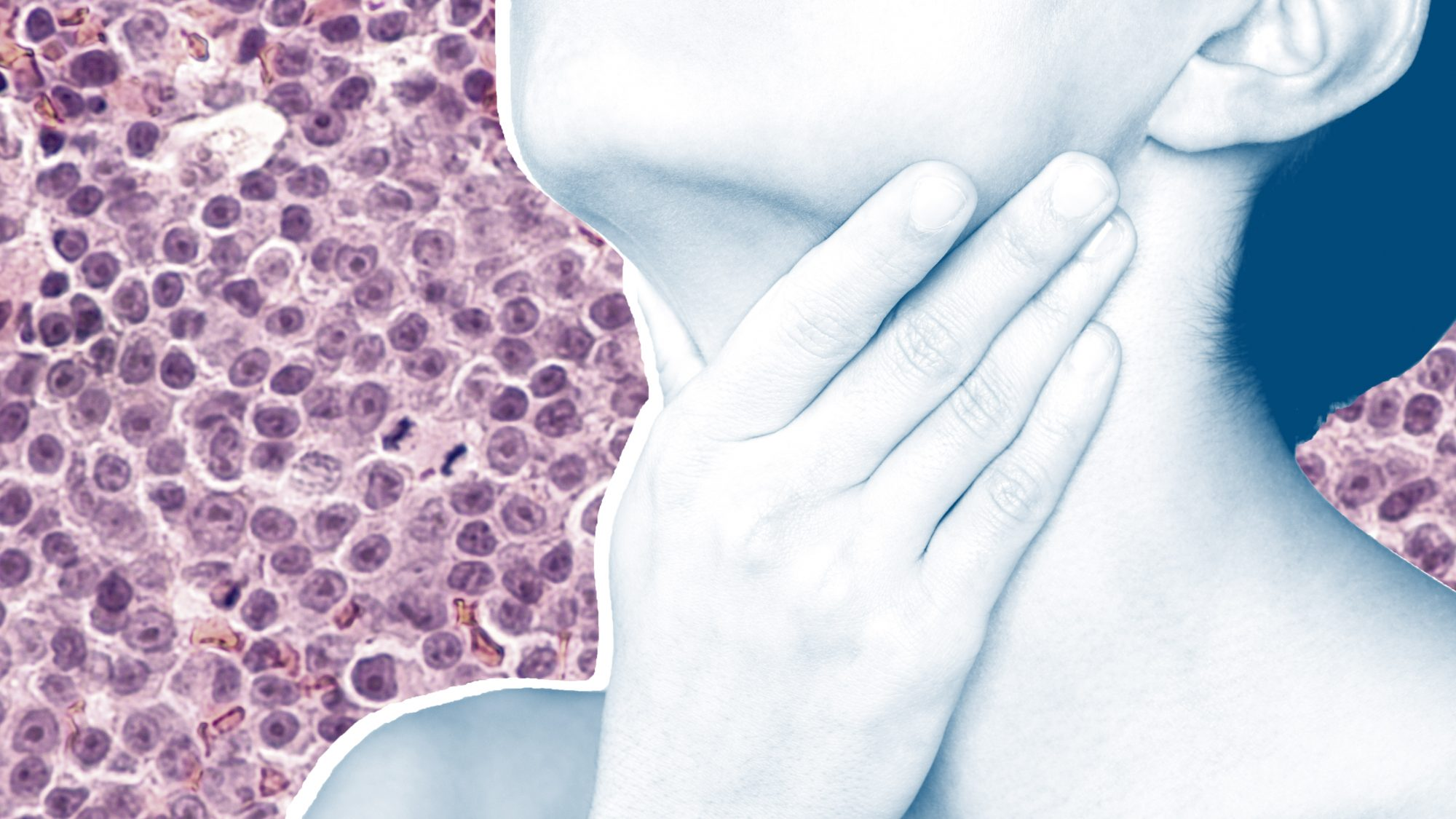 What is Chronic Lymphocytic Leukemia? Cancer Doctors Explain the Symptoms and Treatment Options