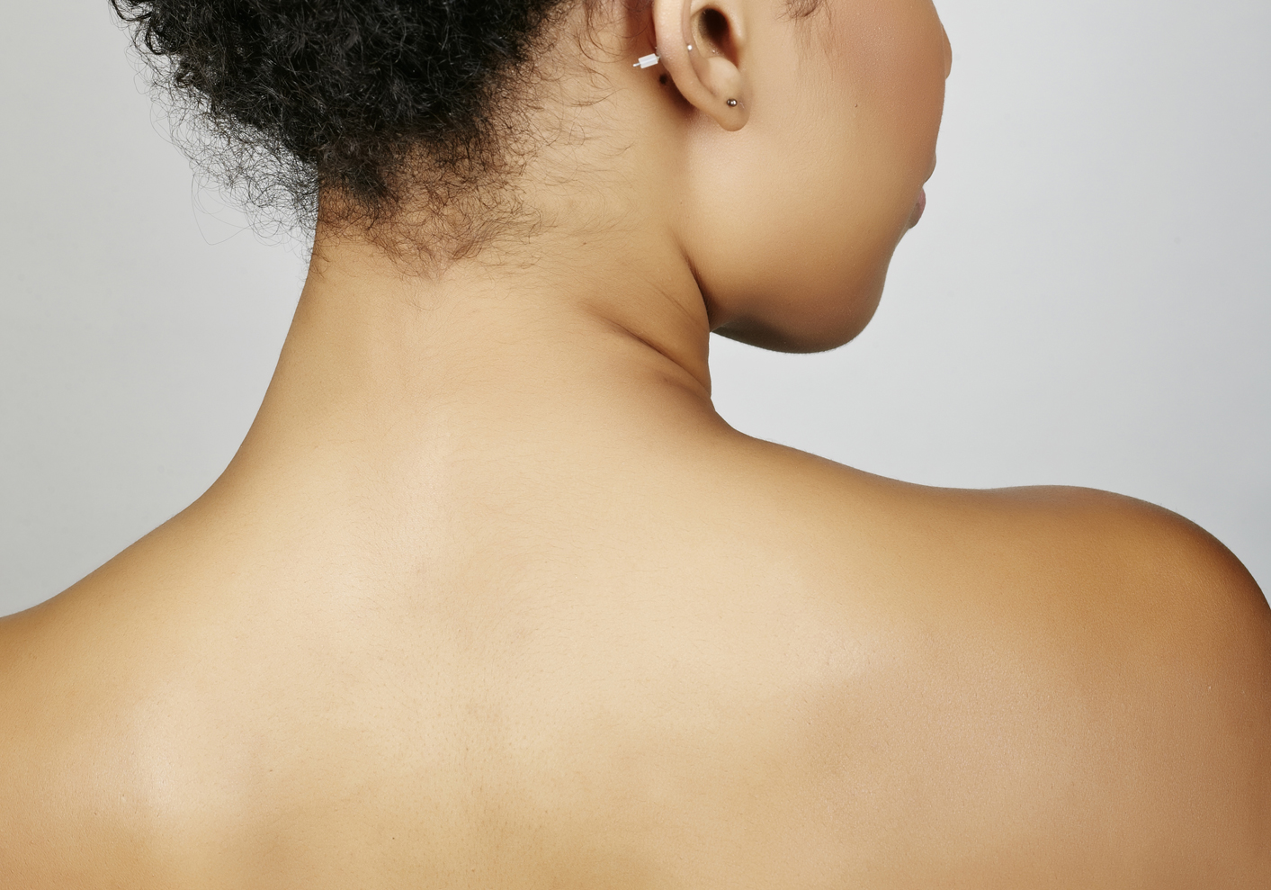The Battle with Bacne: How to Treat and Cover Breakouts on Your Back