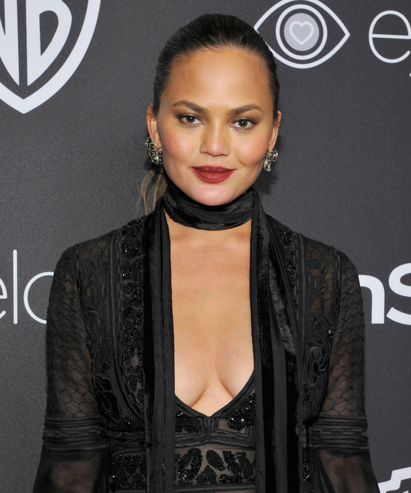 Chrissy Teigen Gets Real About Post-Baby Stretch Marks