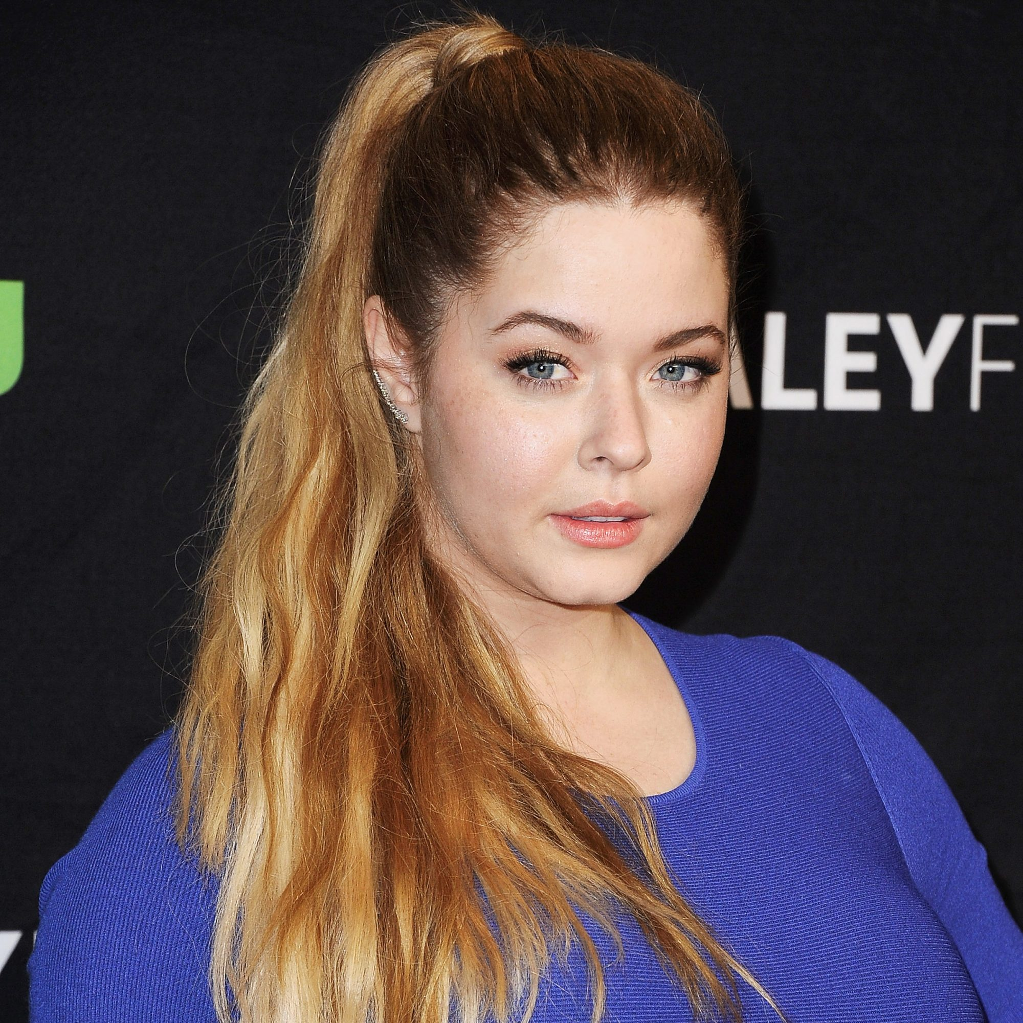 Celebs Who Revealed Health Issues in 2017 - Sasha Pieterse
