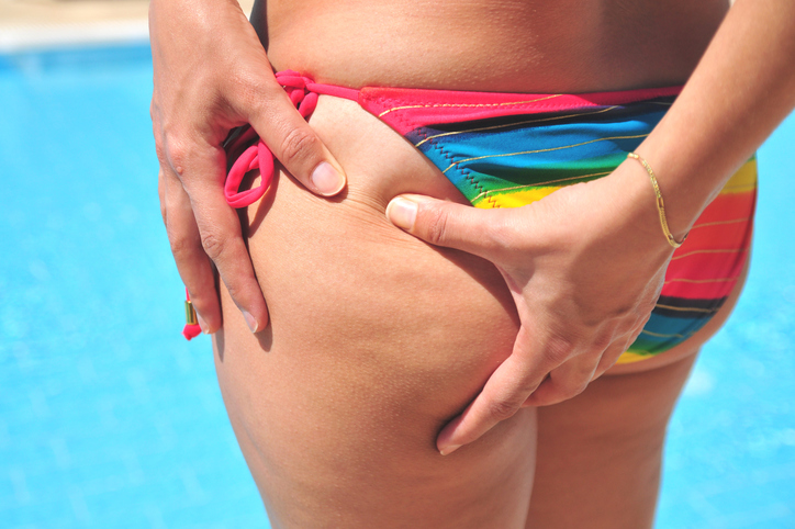 Everything You Ever Wanted to Know About Cellulite