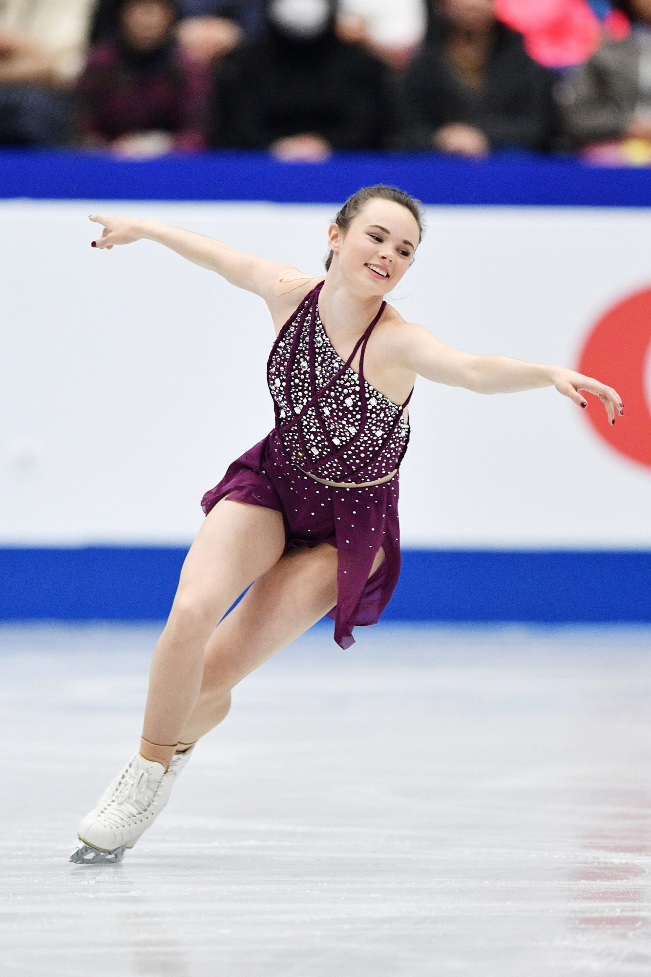 A Figure Skater Was Accused of Purposely Slashing Competitor with Skate
