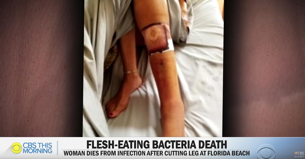 Bacteria comecarne