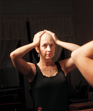 Woman with bald head