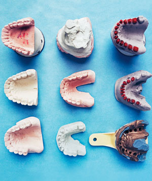 Dentist molds