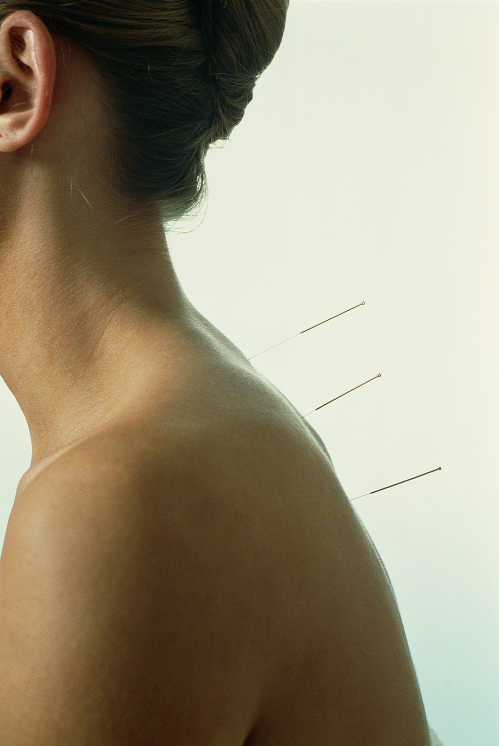 acupuncture-woman