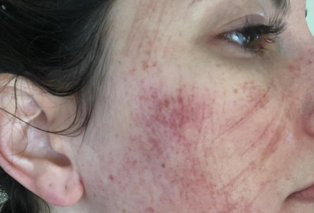 A Facial That Went Horribly Wrong Left Our Beauty Director With Raw Skin for Days