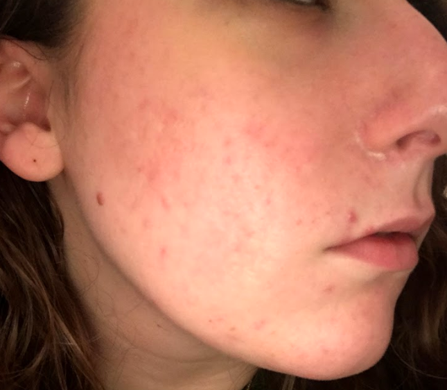 I Tried Fractora to Get Clearer Skin—Here's How It Went Down