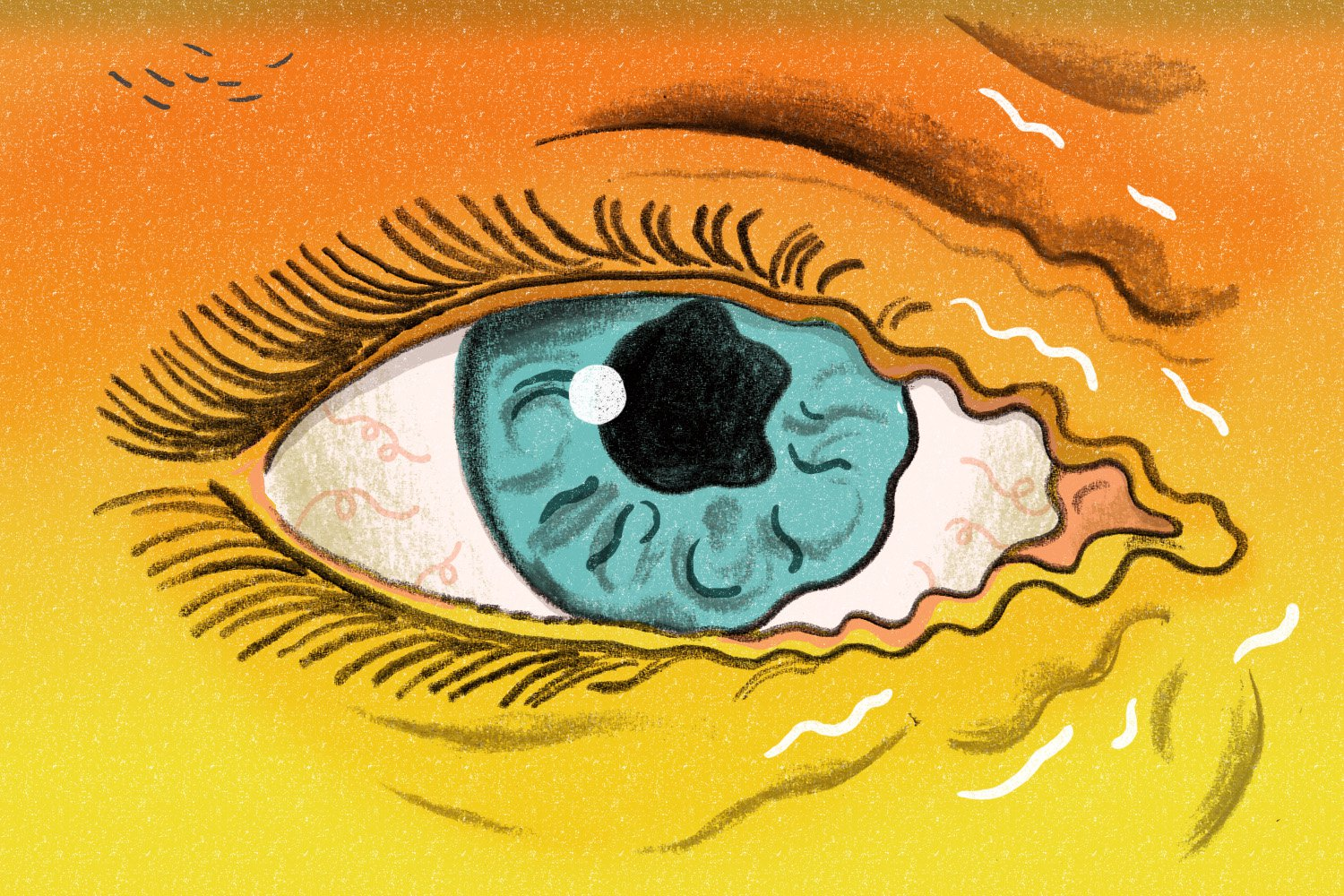 You Asked: Why Does My Eye Twitch?