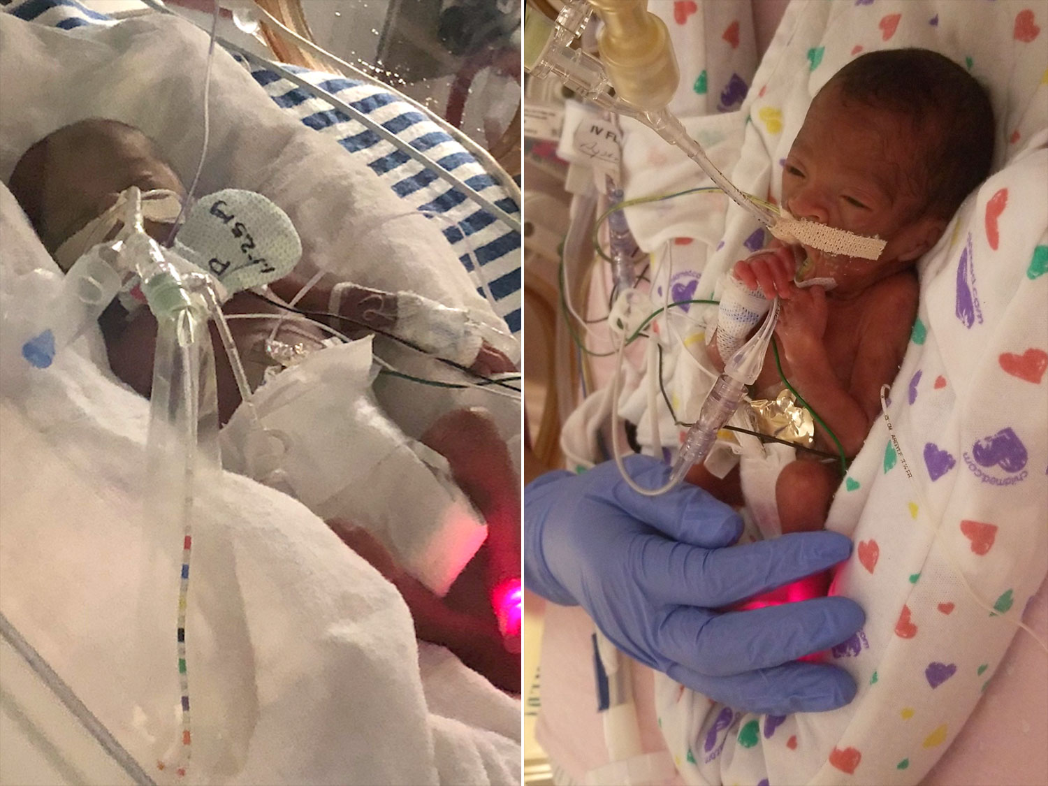 Hurricane Florence's Tiniest Evacuees Flown to Safety from the NICU Ahead of Storm