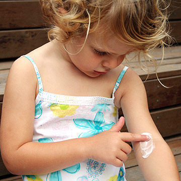 toddler rubbing lotion on eczema