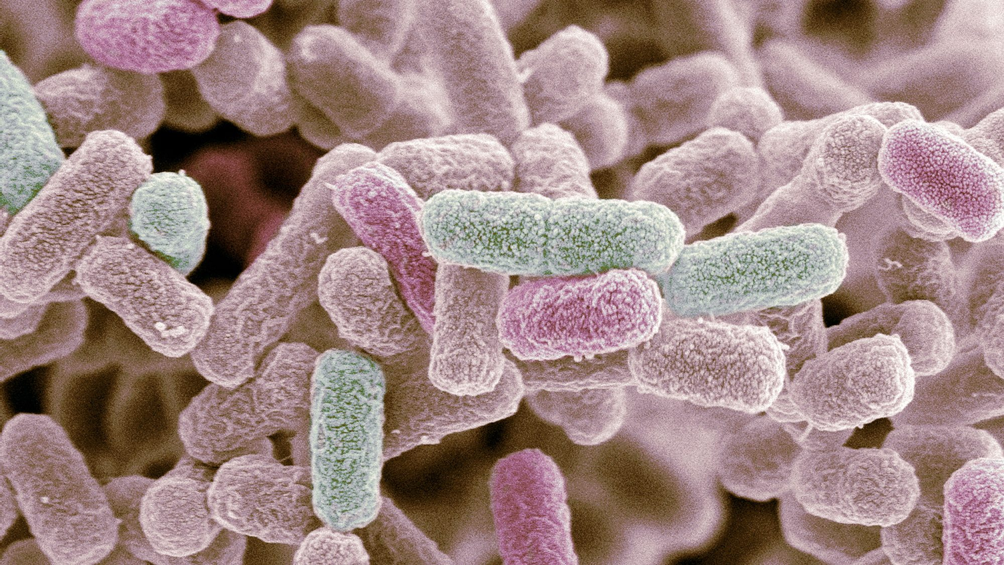 e-coli-outbreak-FT-BLOG0916.jpg